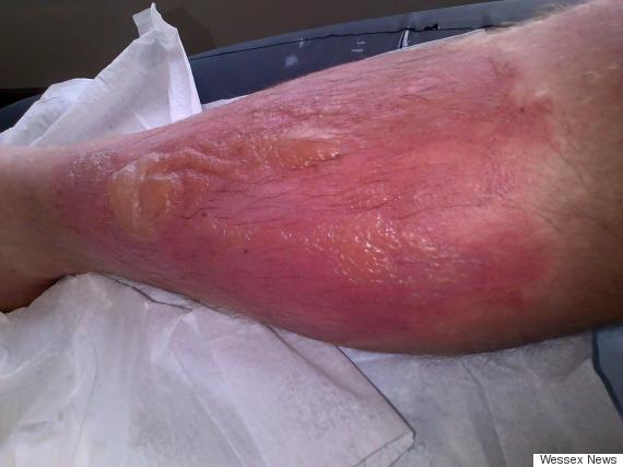 burnt leg hogweed
