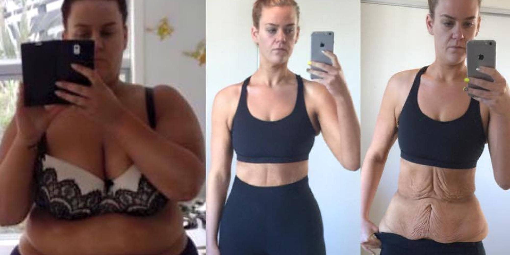 extreme weight loss uk