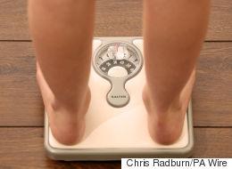 The Inner Clock of Obesity