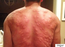 The Perils Of Summer: Always Wear Insect Repellent.