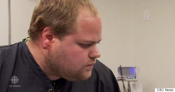 earlobes surgery