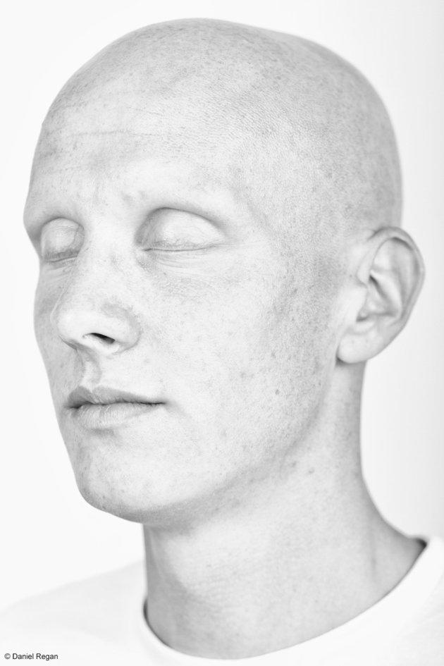 alopecie