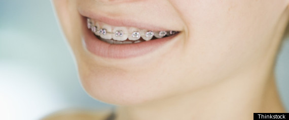 INVISALIGN VS METAL BRACES