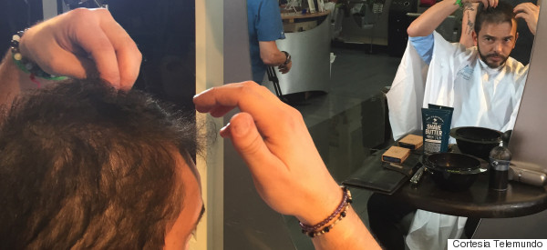 DESPUÉS DE LA SÉPTIMA QUIMIO, JUAN MANUEL SE RAPA LA CABEZA