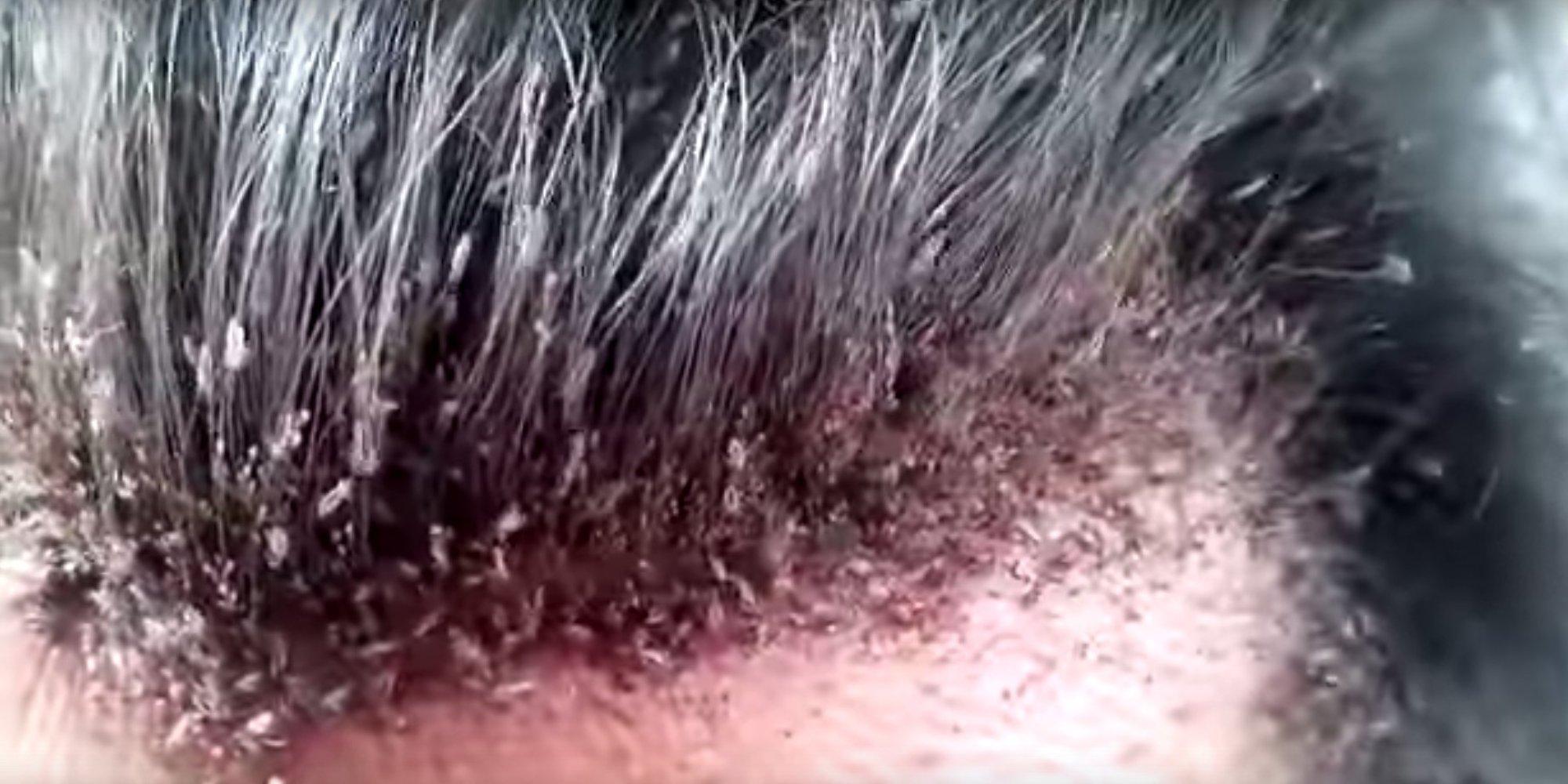 vido rpugnante cet homme a les cheveux remplis de poux - Poux Sur Cheveux Colors