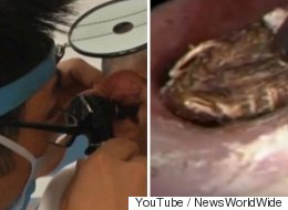 Doctor Removes 'Centipede' From Inside Patients Ear In Gruesome Footage
