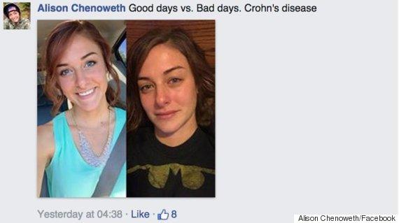 People With Inflammatory Bowel Disease Post Emotional Photos Raising Awareness Of