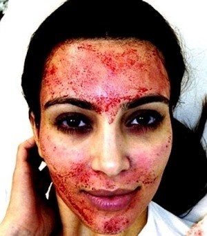 Thought kim kardashian had lost it when she posted a photo of her face