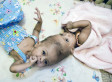 Rital And Ritag Gaboura: Surgeons Separate Conjoined Twin Girls Whose Heads Were Fused Together