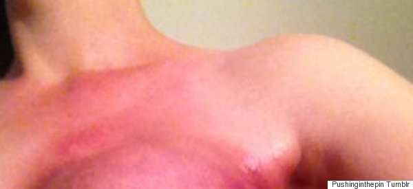 'Here's Your F****** Breast Cancer Awareness' (Graphic Images)