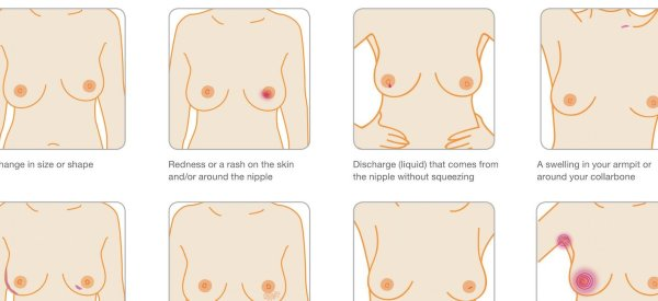 Why It's Important To Remember Breast Cancer Is 'More Than A Lump'