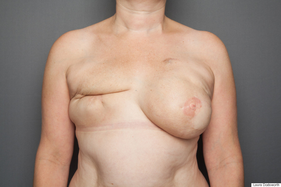 masectomy for breast