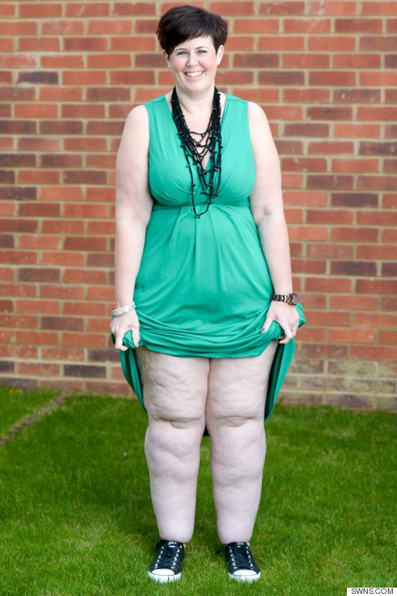 Fat Storing Condition Lipoedema Leaves Woman With 10 Stone