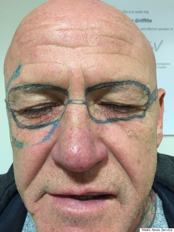 Man Wakes Up With Ray Ban Sunglasses Tattooed On His Face After Friend S Stag Do