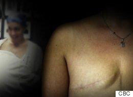 Elle a subi une double mastectomie par erreur