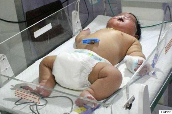 biggest baby