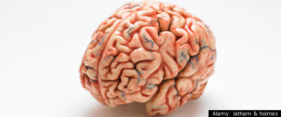 ALZHEIMERS INFECTION