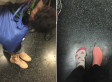 Kind-Hearted Commuter Gives Homeless Woman The Shoes She Is Wearing
