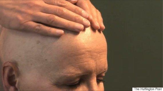 chemotherapy scalp care