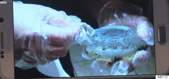 mouldy breast implant