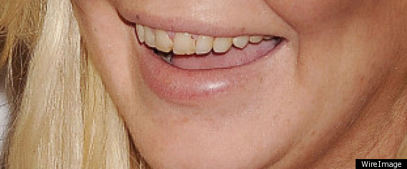 Lindsay Lohan Teeth Rotting