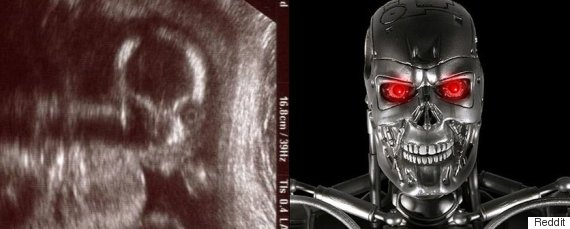 creepy ultrasound