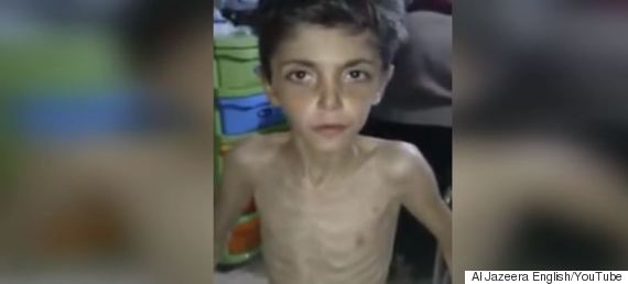 starving children syria