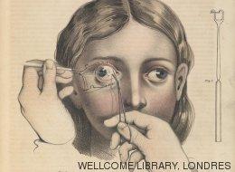 Ces dessins douteux servaient aux chirurgies à l'époque