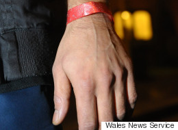 Asylum Seekers Wristbands 'Like Something From Nazi Germany'