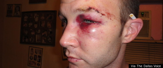 Gay Hate Crime Texas. First Posted: 11/02/11 02:42 PM ET Updated: 01/02/12 ...