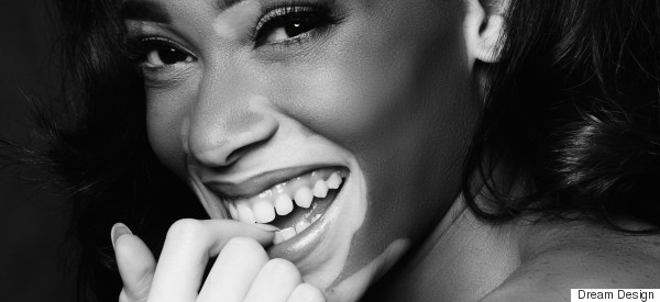 Winnie Harlow On Self Love, Bullying And Addressing Beauty Diversity
