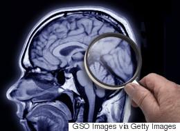 La minute positive: Espoir pour la maladie d'Alzheimer (VIDÉO)