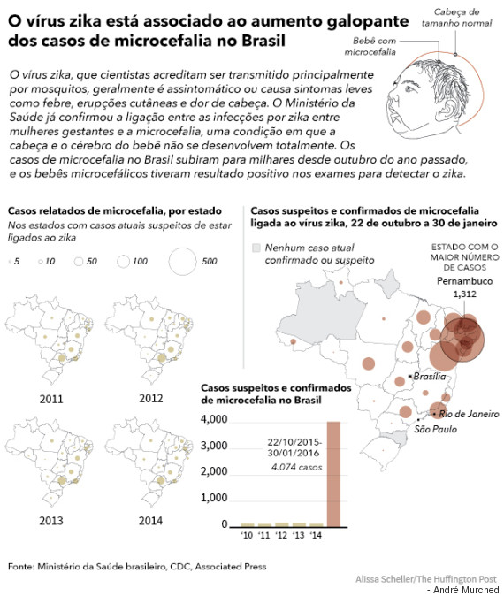 microcefalia no brasil
