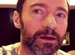 Hugh Jackman Shares Skin Cancer Warning On Twitter