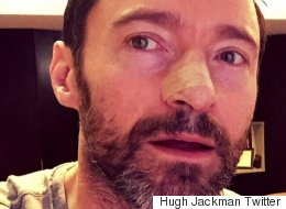 Hugh Jackman Shares Skin Cancer Warning: 'This Is What Happens When You Don't Use Sunscreen'
