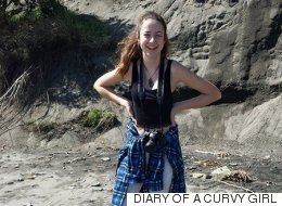 Diary Of A Curvy Girl: Teenager With Scoliosis Grows 10cm Taller After Curved Spine Is Straightened