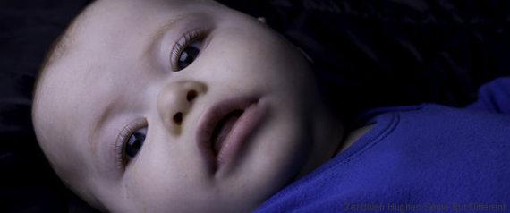 rare children diseases