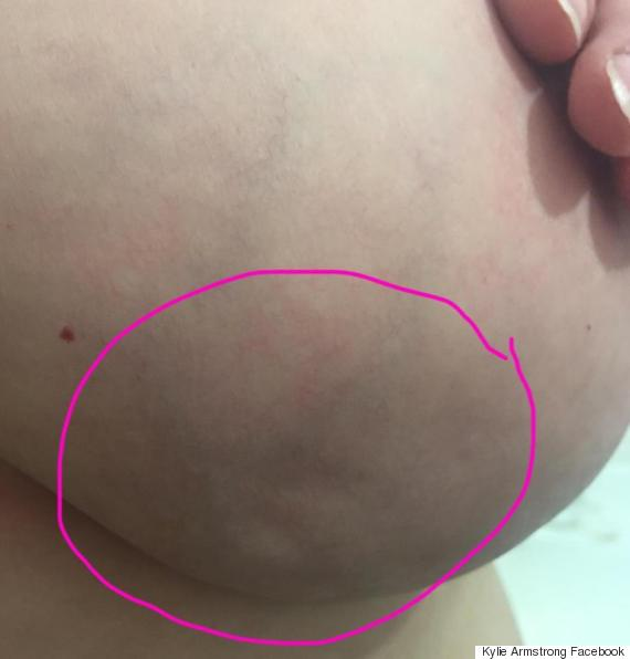 skin cancer on breasts #10