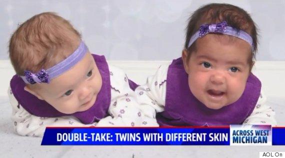 aila adalynn fraternal twins