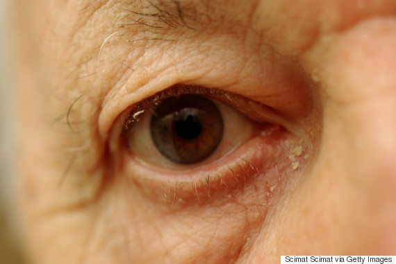 What Is Eye Gunk And Why Do We Get It?