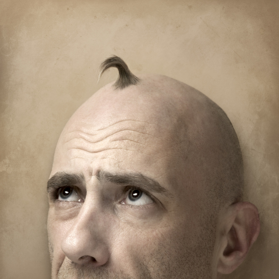 hair problems bald man