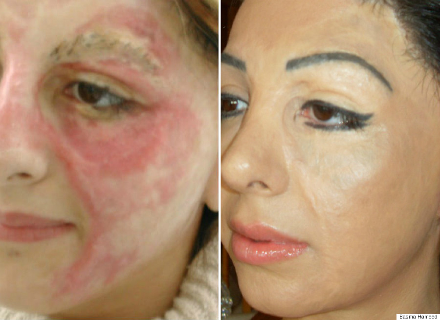 basma before after