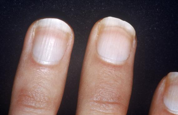 nail lines