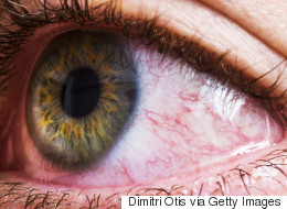 How To Deal With Allergies When You Wear Contacts
