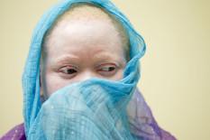 Kind mit Albinismus | Bild: PA