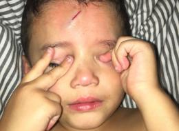 La belle idée d'une maman pour dédramatiser la blessure de son fils (PHOTOS)