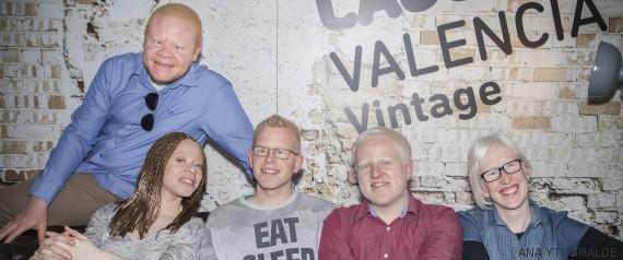 encuentro albinos