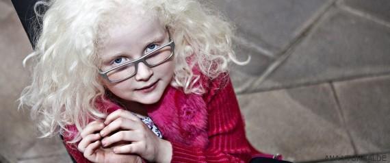 piel albinos