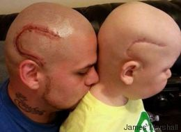 Ce papa se fait tatouer une cicatrice identique à celle de son fils