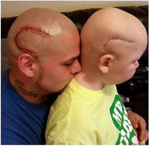 cicatrice cancer